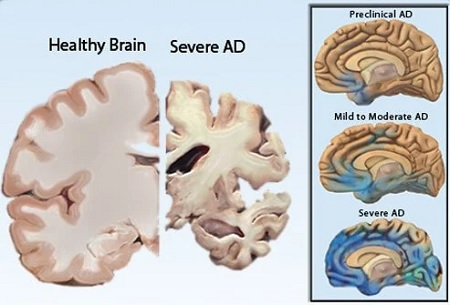 Is an Alzheimers Drug a Good Investment - Brain in Alzheimers